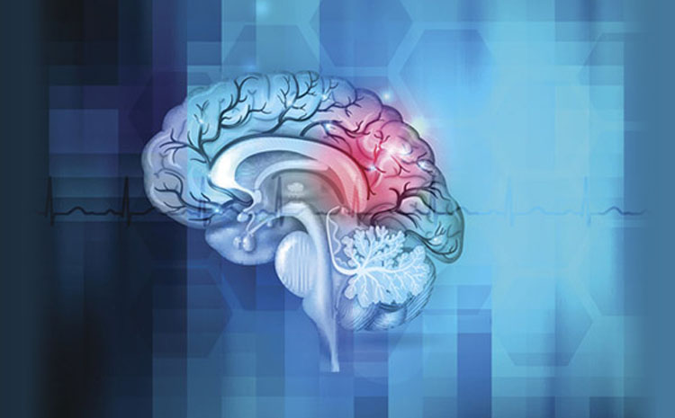 Cryptogenic Stoke: A Stroke of Unknown Cause